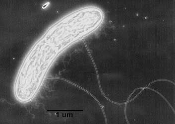 Geobacter metallireducens, an iron breathing bacteria