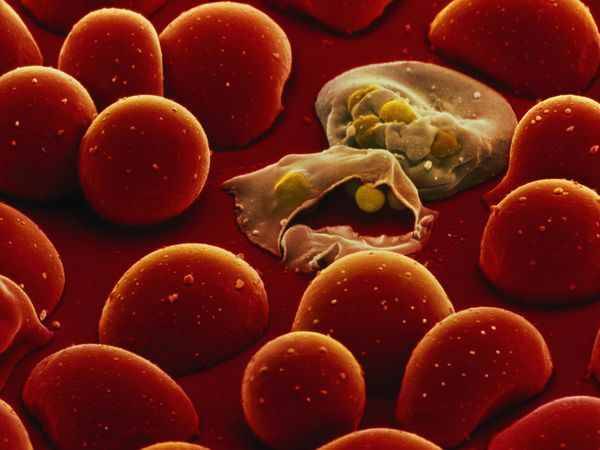 Malaria parasite P. falciparum eats its way through the hemoglobin in red blood cells.  Credit: National Geographic