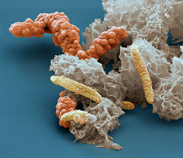 Scanning electron microscope image of iron oxidizing bacteria Acidovorax sp. BoFeN1, encrusted in iron minerals. Microbes, enzymes and minerals are often intimately associated in soils, making it difficult to separate out their contributions to biochemical reactions. Source: Eye of Science, Reutlingen