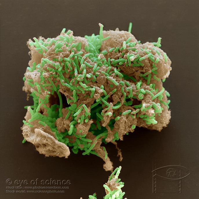 Geobacter, a rock-dwelling bacteria coating iron oxide minerals. Credit: Wikipedia